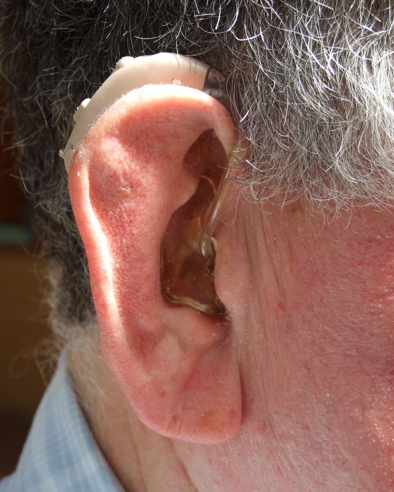 protesi acustica retroauricolare orecchio govoni otorino otoneurolaringologia