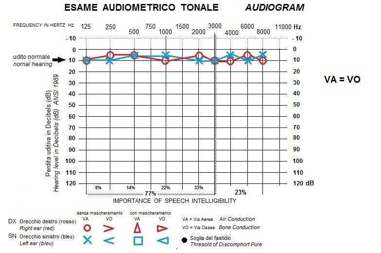 audiogram normal hearing