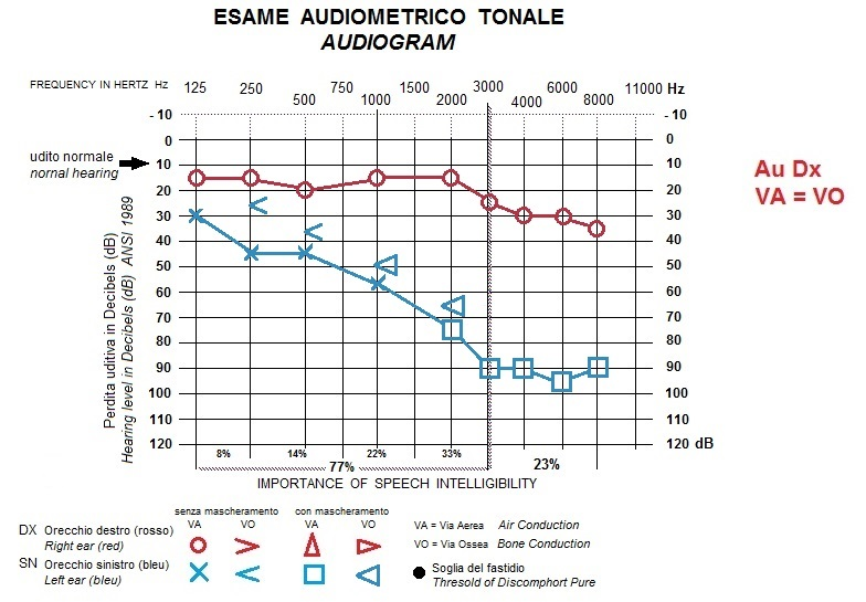 audiogram sudden deafness