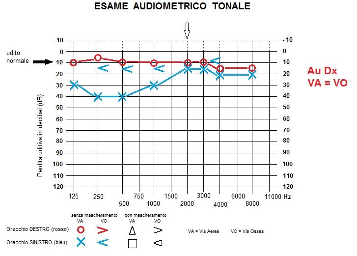 audiogram transmission mild hearing loss