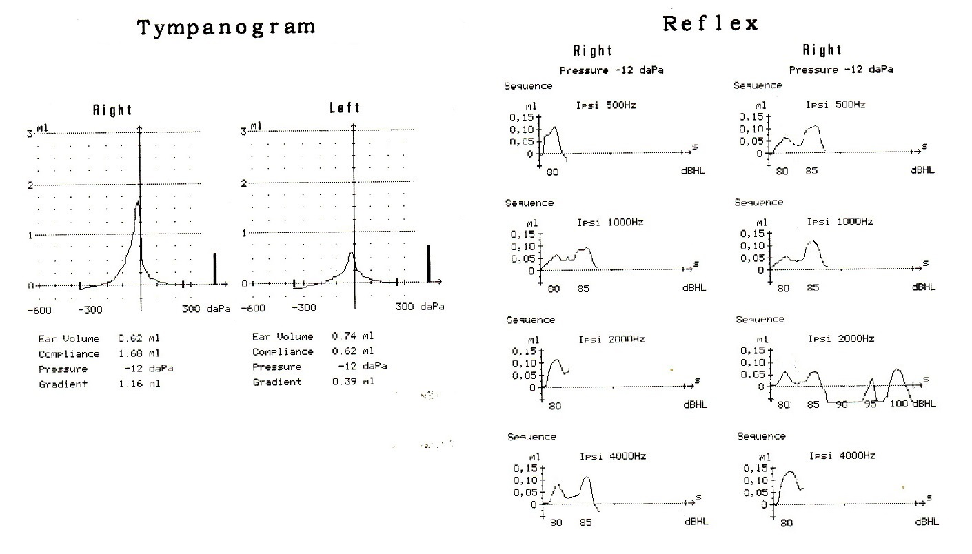 tympanometry and reflex